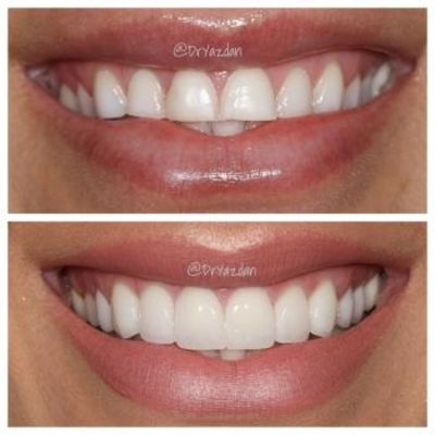 Dr. Desiree Yazdan - Center For Restorative & Cosmetic Dentistry - 15.01.19